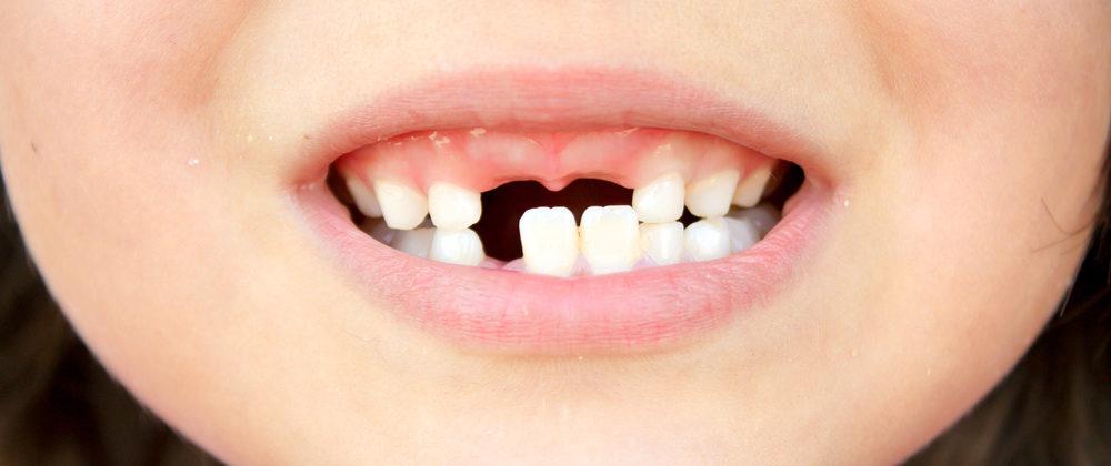 Выбитые зубы – не конец света! Инструкция по восстановлению
