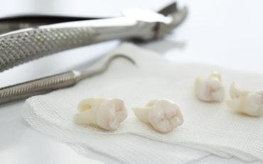 удаление зубов в хирургической стоматологии