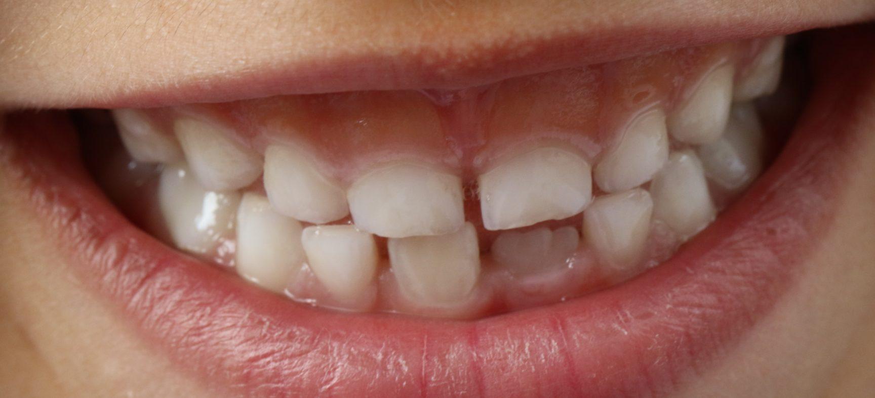 Детское зубное протезирование в Киеве