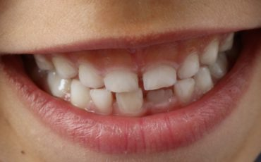 протезирование молочных зубов: виды и показания