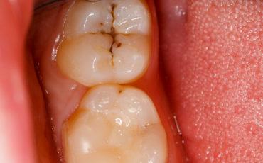 герметизация фиссур у постоянных и молочных зубов