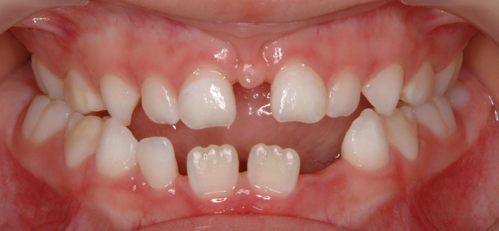 Пластика уздечек языка и губ