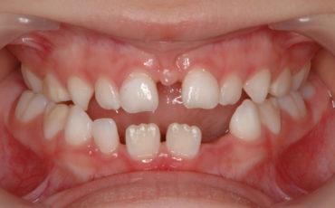 пластика уздечки губ и языка: этапы и процесс