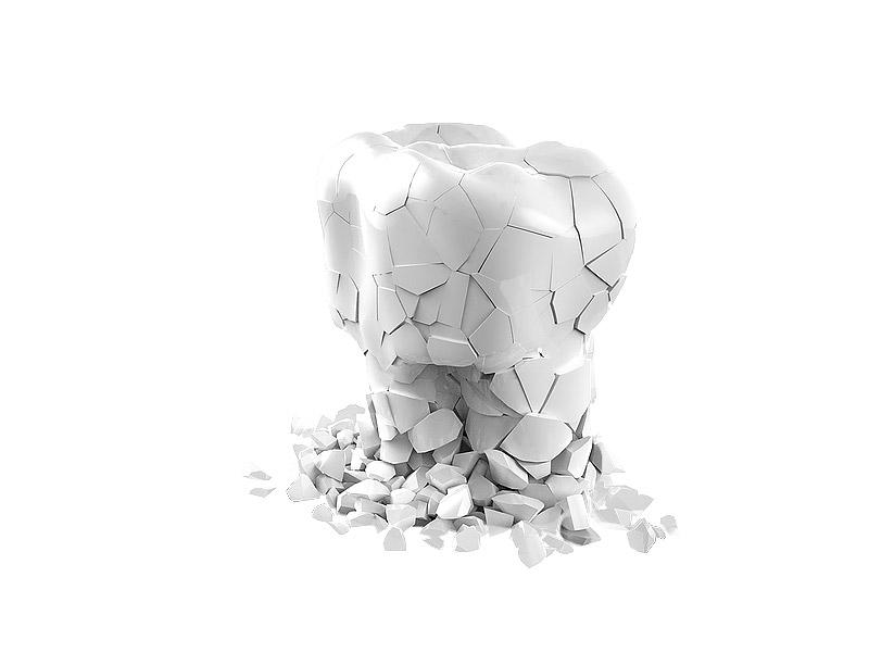 Атрофия костной ткани