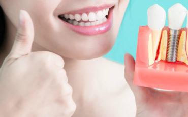 гарантия на зубную имплантацию