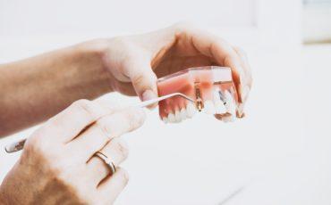 зубные имплантаты Megagen (Мегаджен)