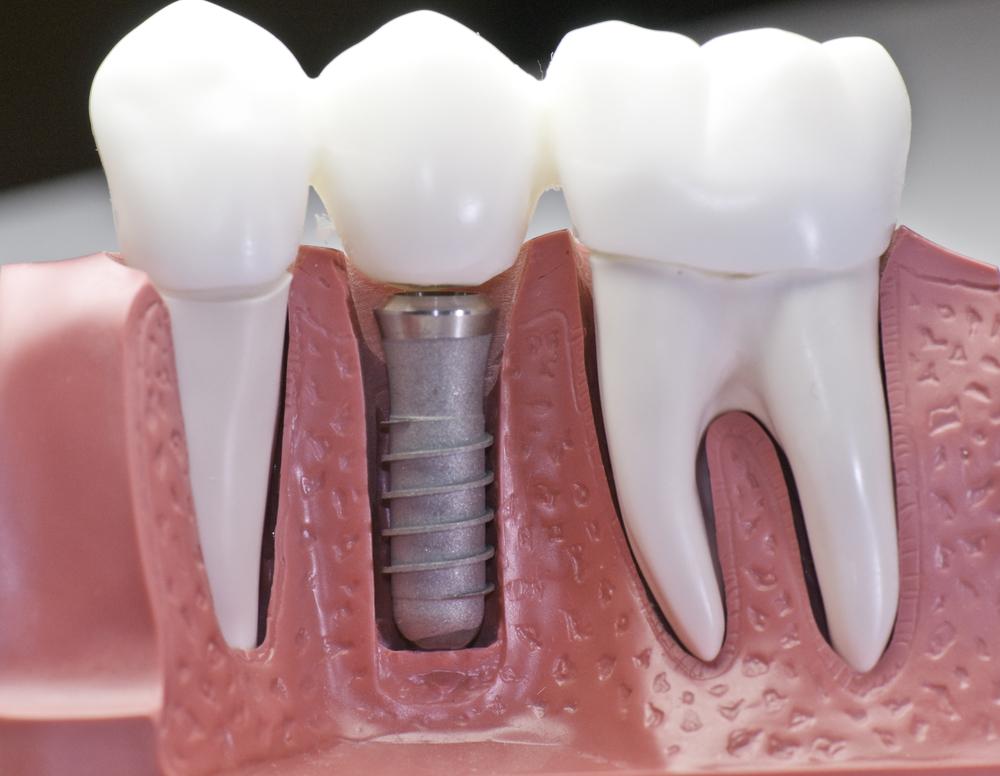 Протезирование зубов на имплантатах в Киеве: виды, материалы, цены