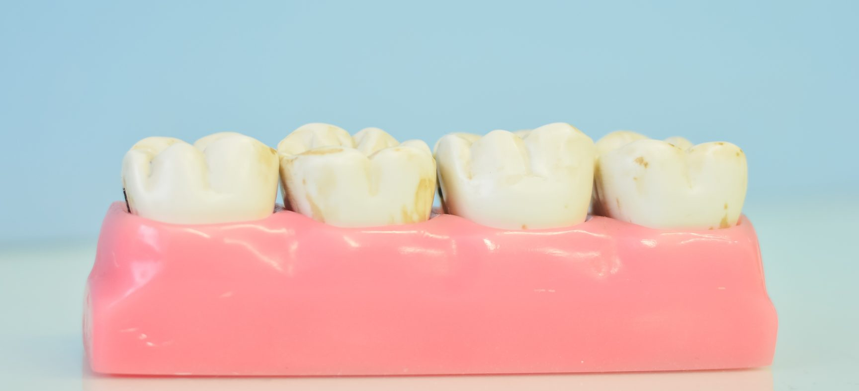 Временные коронки на зубы