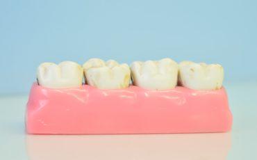 временные коронки при протезировании зубов