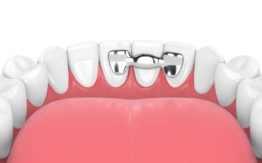 шинирование зубов в ортопедической стоматологии