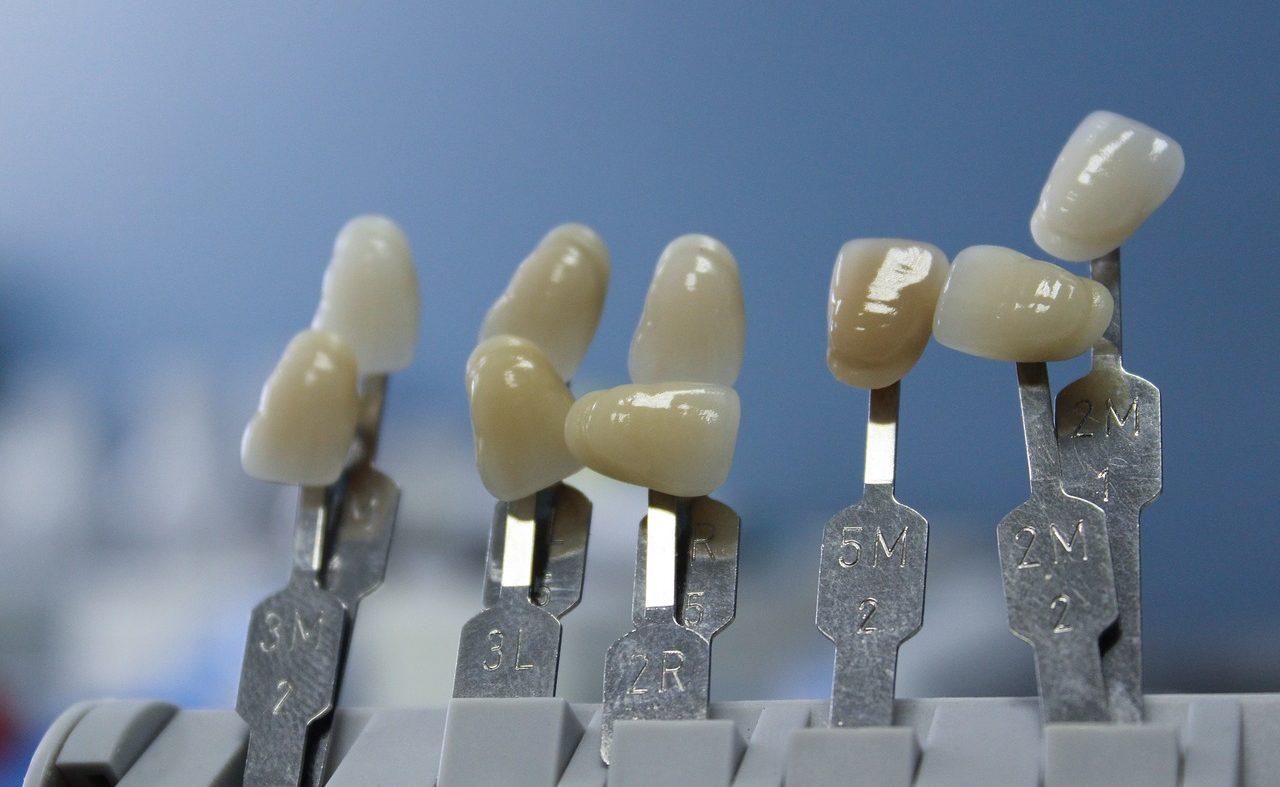 Микропротезирование зубов в Киеве