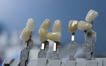 микропротезирование в стоматологии: показание и виды