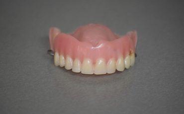 съемные зубные протезы: виды и установка