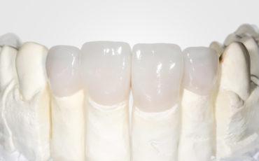 циркониевые коронки в ортопедической стоматологии