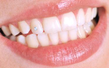 украшение зубов (скайсы)