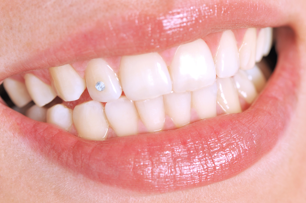 Украшения зубов (скайсы) в Киеве