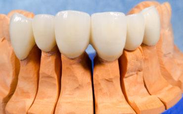 металлокерамические коронки при протезировании зубов