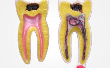 детектор кариеса C-Hunter в терапевтической стоматологии