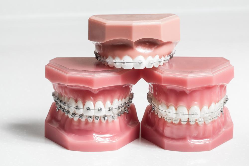 Выравнивание зубов в Киеве: виды и процедура