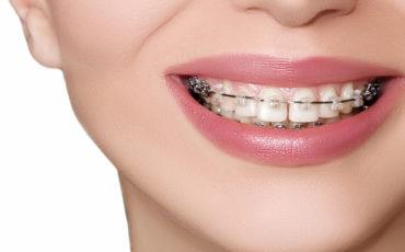 сапфировые брекеты в ортодонтии: преимущества и установка