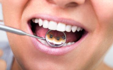 лингвальные брекеты в ортодонтической стоматологии