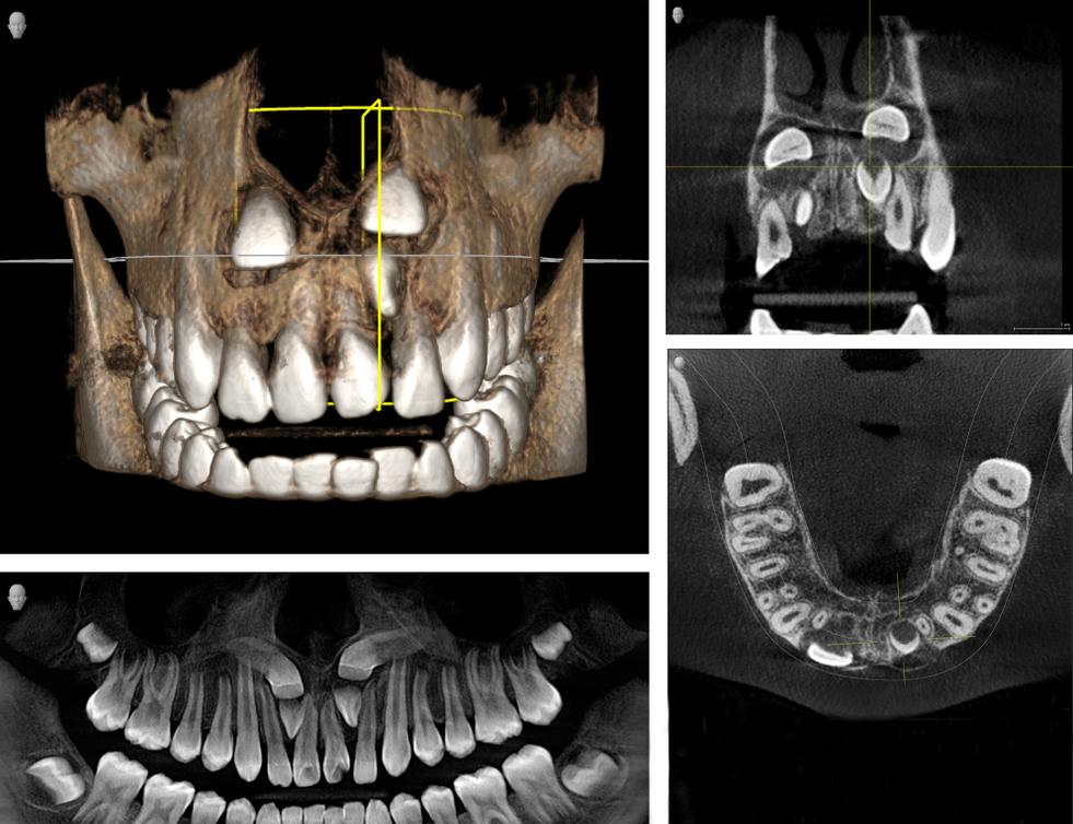 этапы ортодонтической диагностики