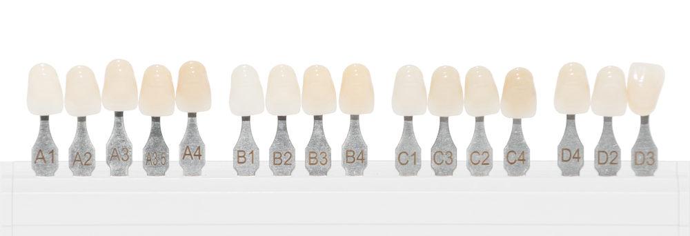 Белизна зубов: не переборщить, но улучшить
