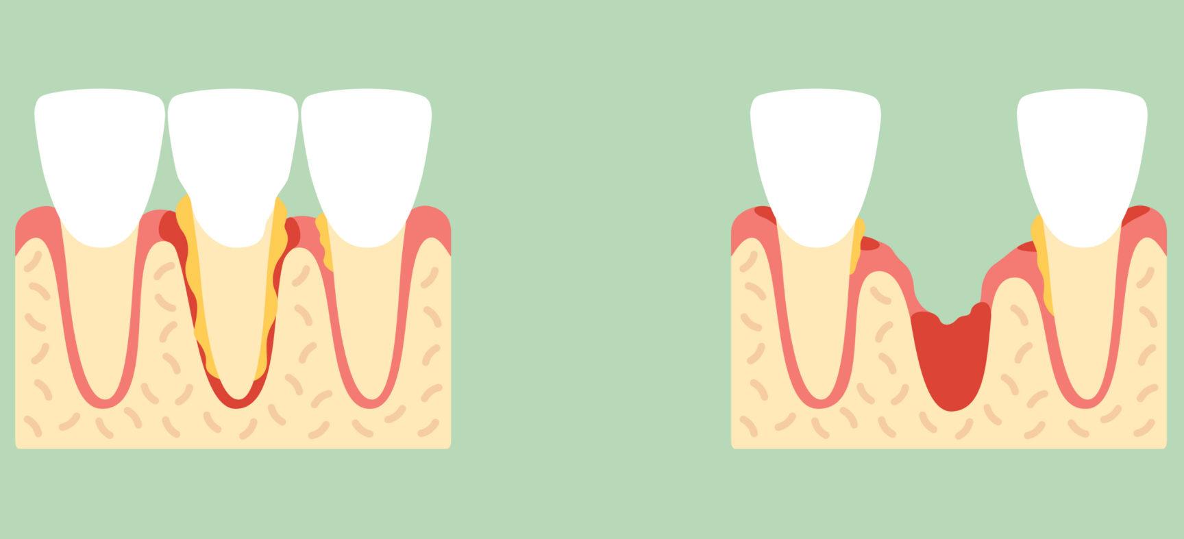 Все еще чувствуется удаление зуба? Определяем симптомы осложнений