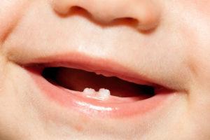 Появление молочных зубов: как помочь себе и ребенку с этим справиться?