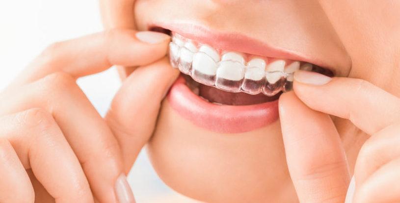 Выравнивание зубов без брекетов: альтернатива есть!