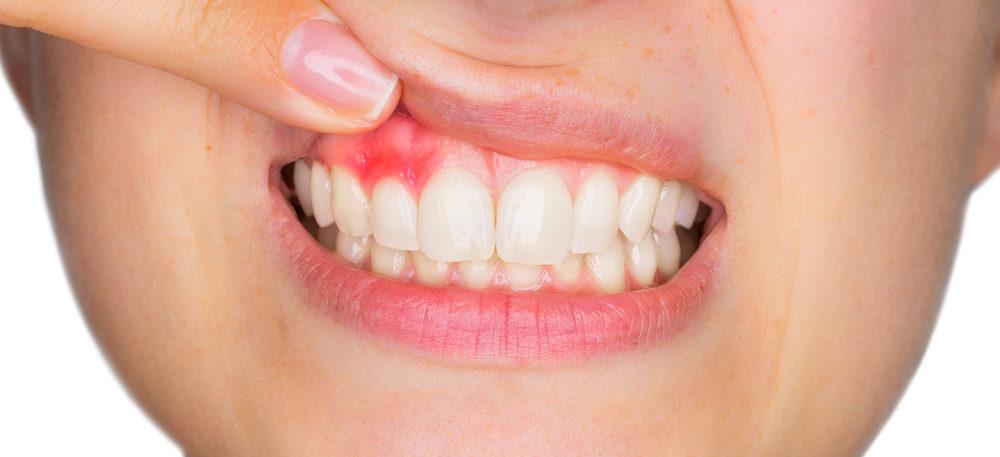 Воспаление десневого сосочка: причины, процесс, лечение