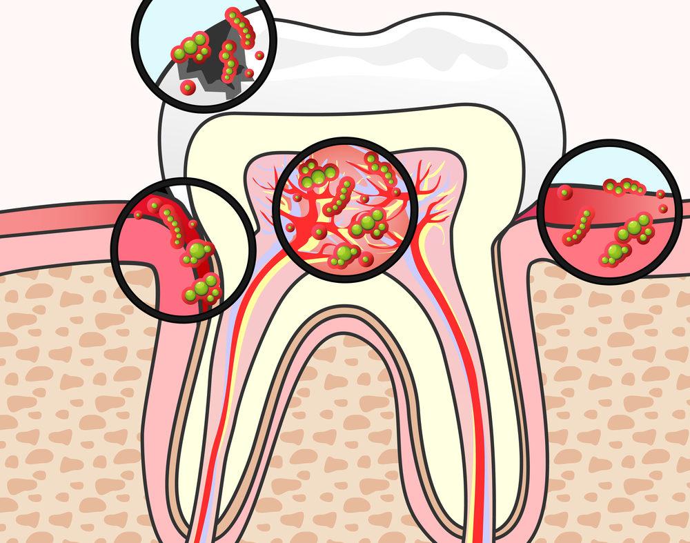 Пародонтологические бактерии: выявление и лечение