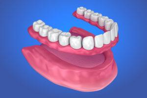 съемные протезы в протезировании зубов