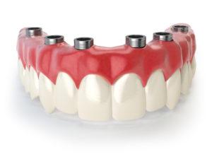 несъемные протезы в протезировании зубов