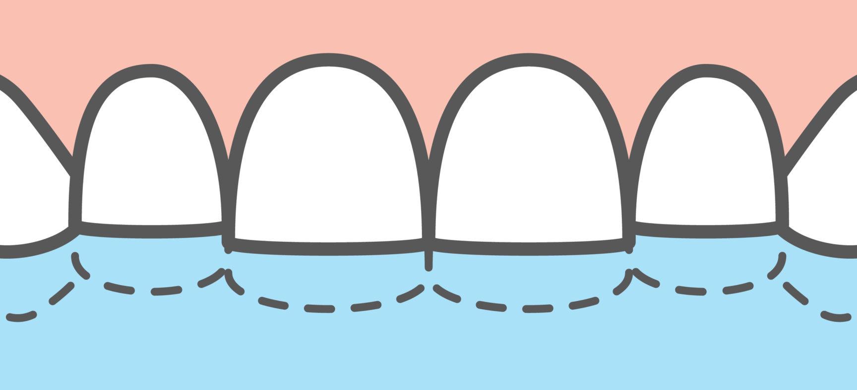 Патологическая стираемость зубов: как возникает и как решается