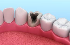 Определяем стадию кариеса по состоянию зубов