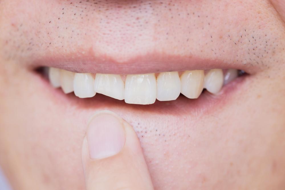 Слом зуба: 3 способа красивой реставрации