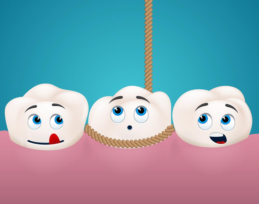 Простое и сложное удаление зуба – в чем разница?