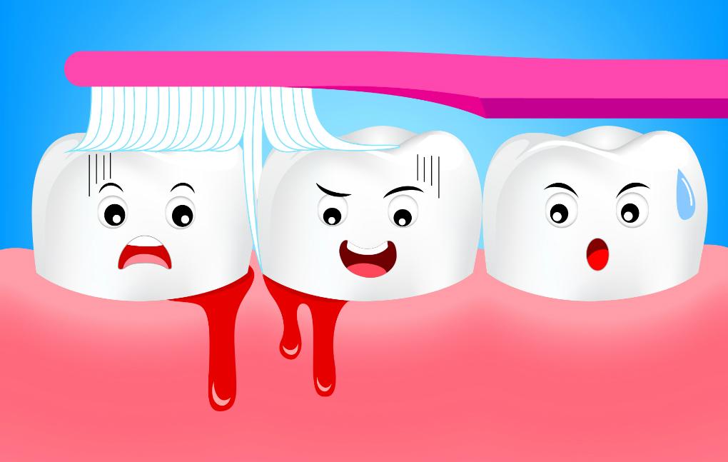 Кровотечение во время чистки зубов: что делать?