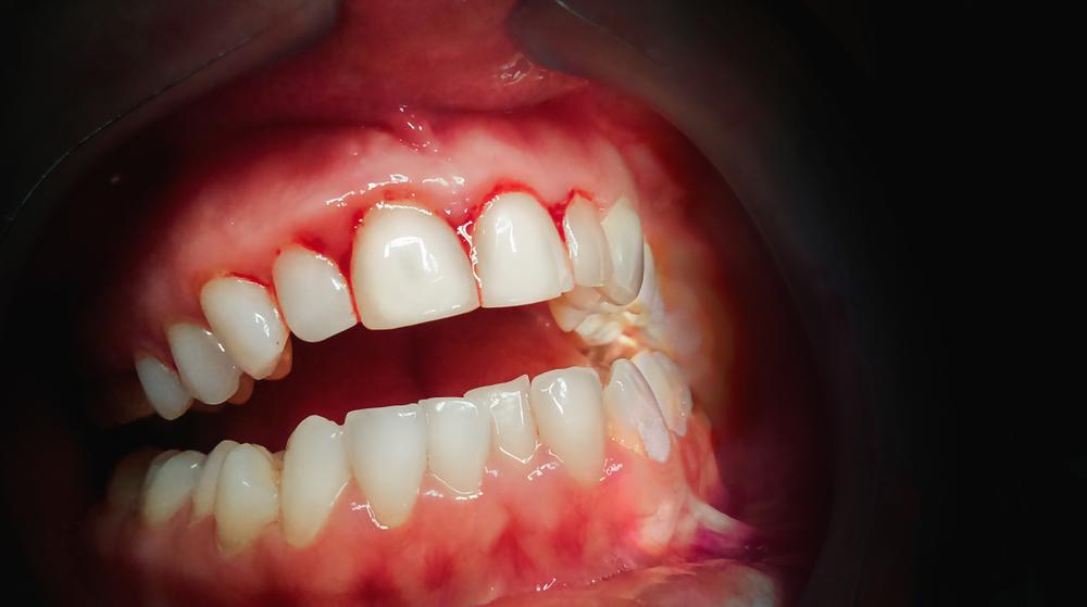 Пломбирование или протезирование зубов при воспалении десен