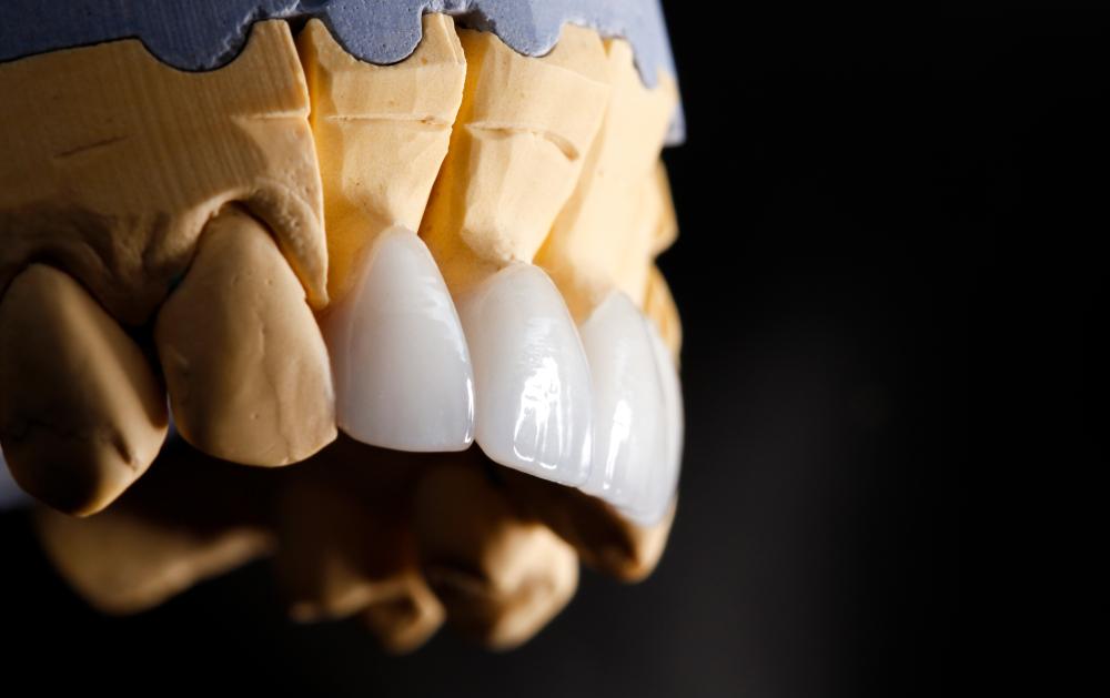 Задайте этих 4 вопроса стоматологу перед реставрацией передних зубов