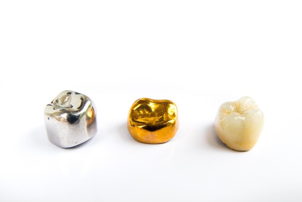 Стоит ли устанавливать золотую коронку?