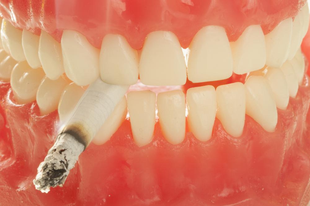 Что нужно знать любителям сигарет перед имплантацией зубов?