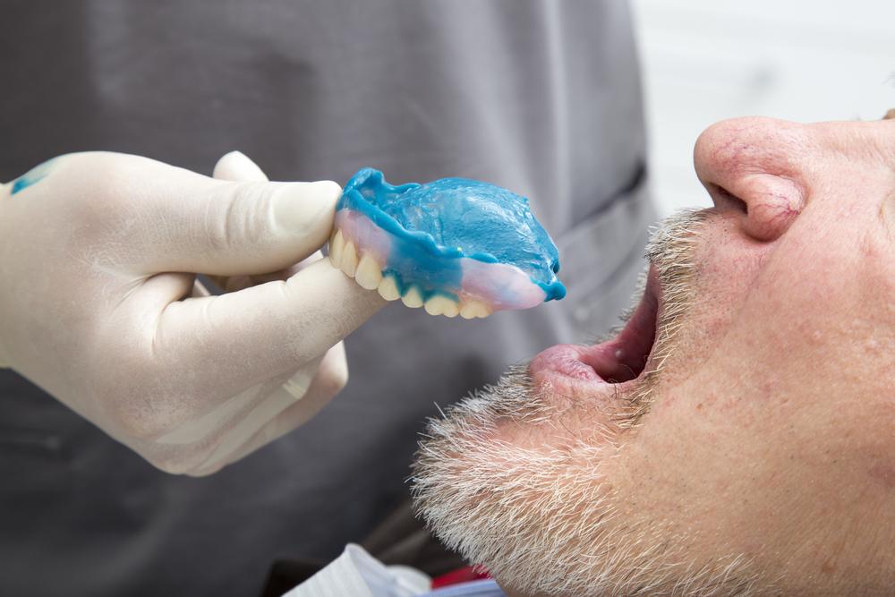 Протез плохо держится на зубах? Пора его менять!