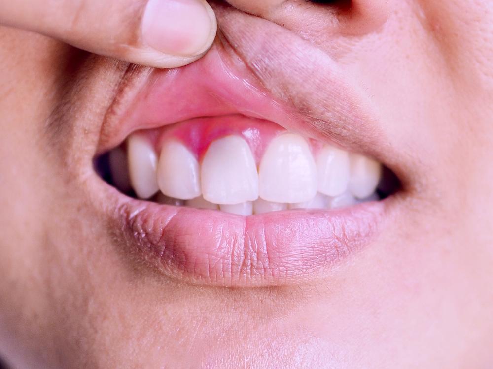 Воспаление десны вокруг коронки: причины, лечение, диагностика
