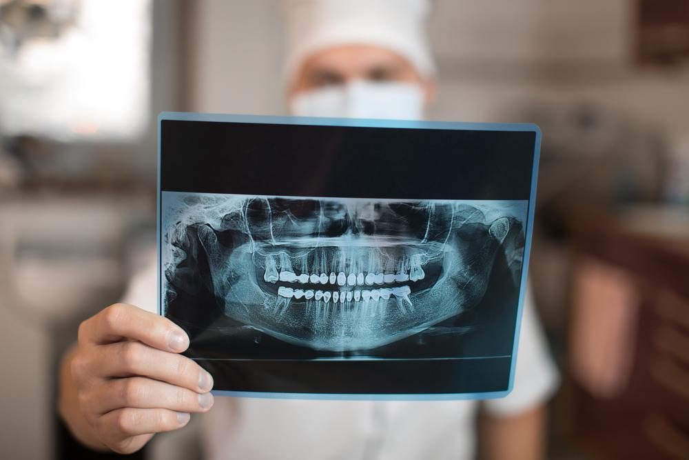 А Вам сделали рентген правильно?