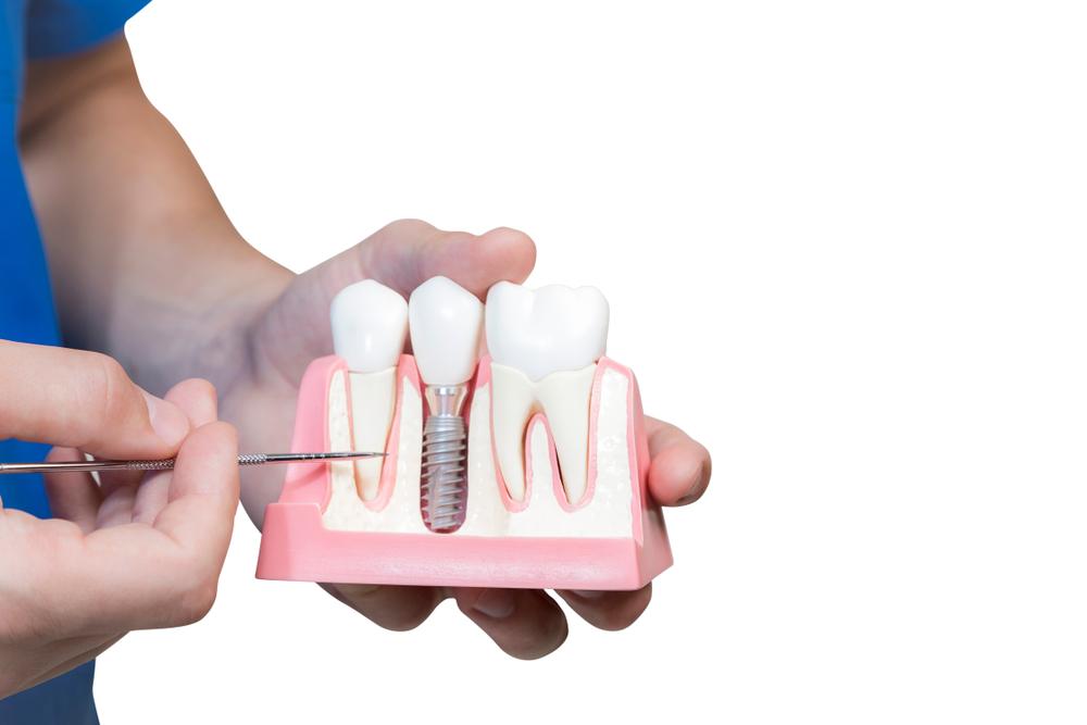 Качество и цена: как выбирают имплантаты стоматологи?
