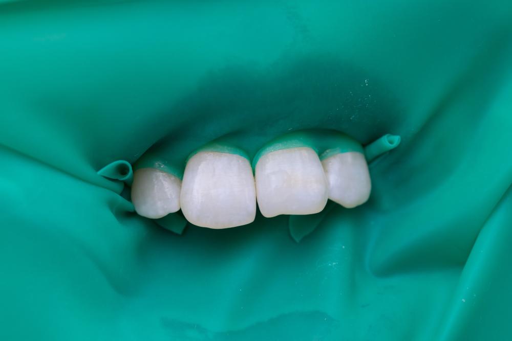 Miracle Mix или EQUIА Forte: что лучше для реставрации передних зубов?