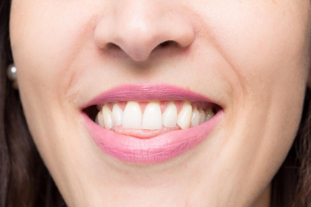 Открытый прикус как способ реставрации формы зубного ряда