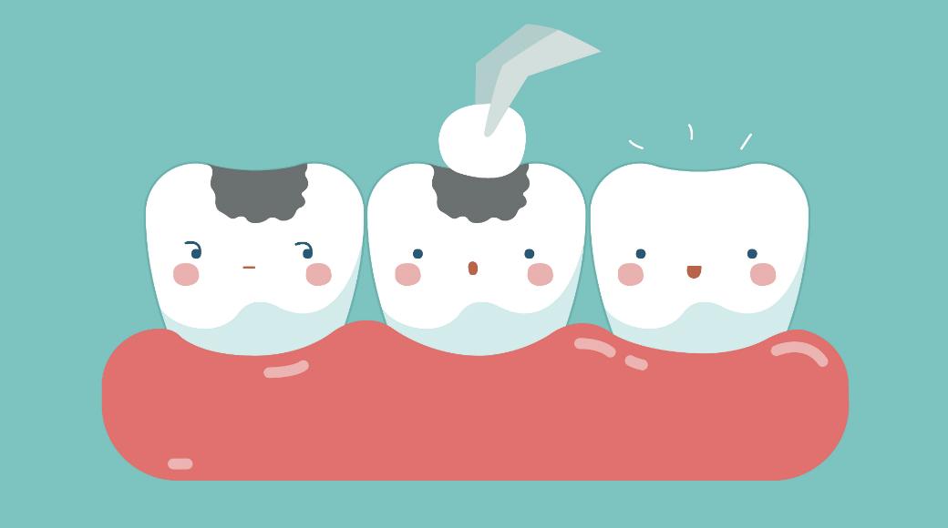 Быть или не быть: каковы сомнения дантистов при пломбировании зубов?